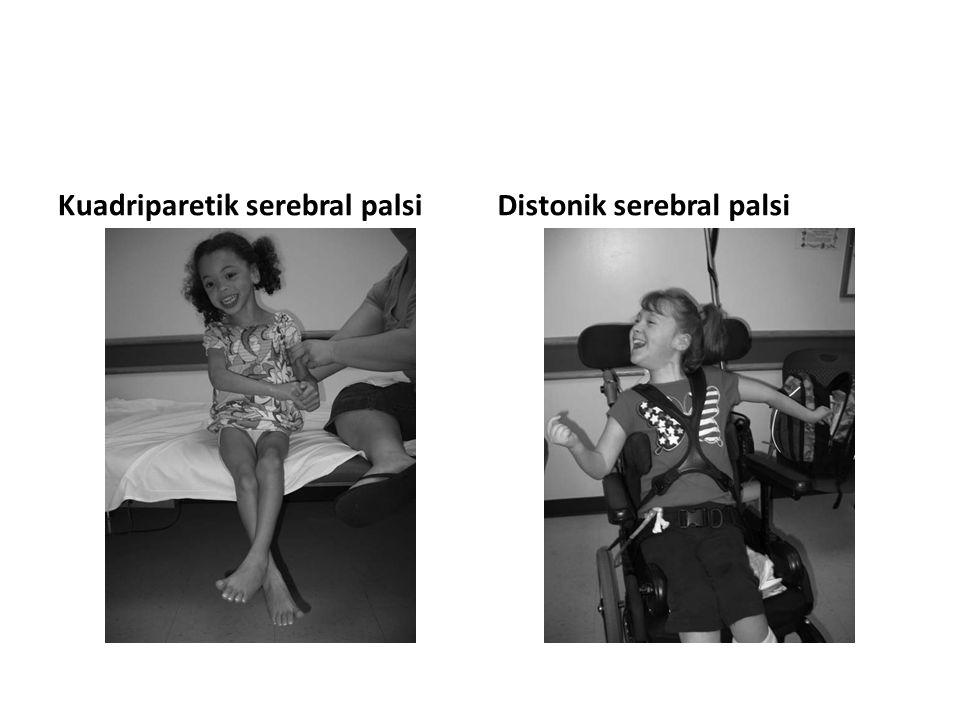 Kuadriparetik serebral palsi