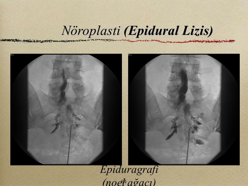 Nöroplasti (Epidural Lizis)