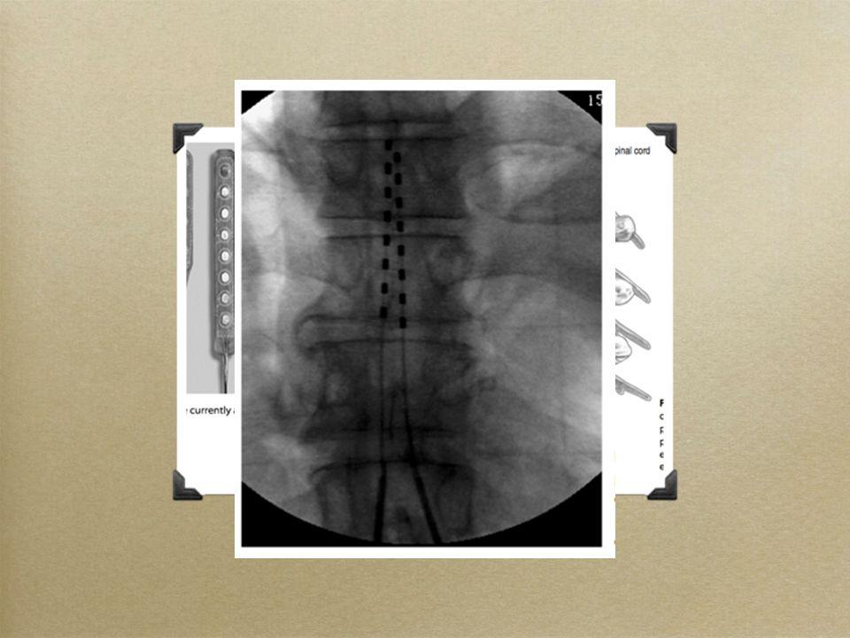 SCS elektrodları