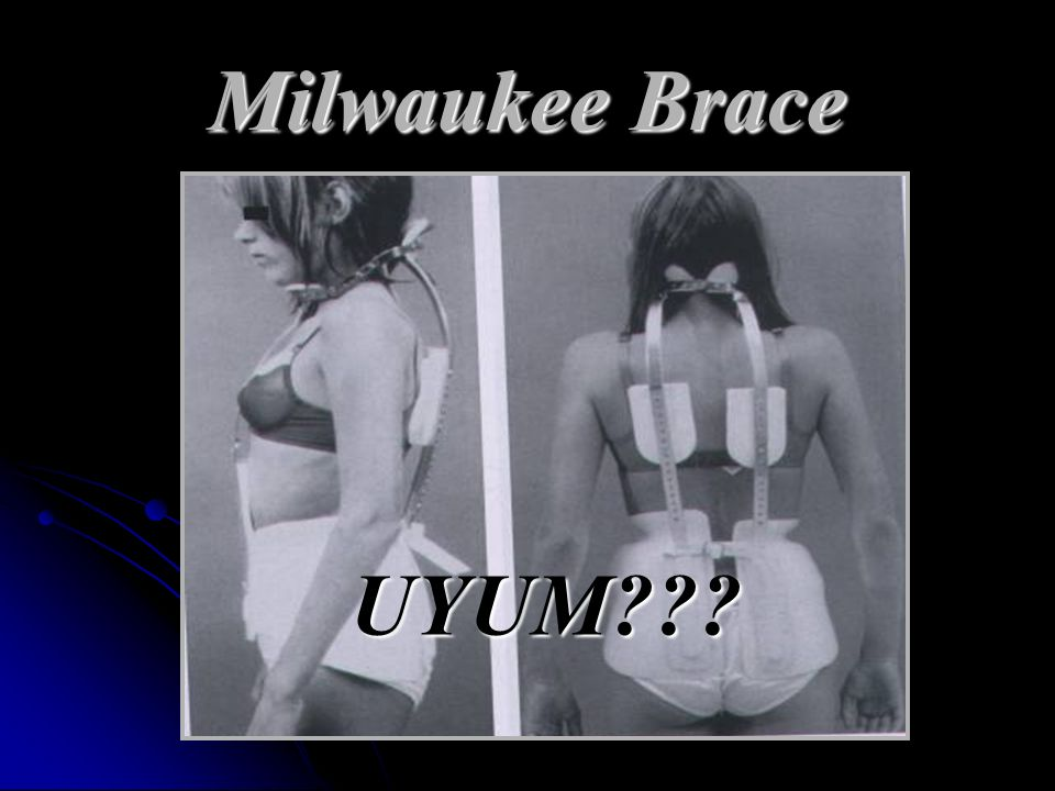 Milwaukee Brace UYUM