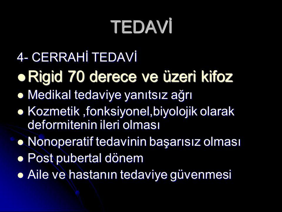 TEDAVİ Rigid 70 derece ve üzeri kifoz 4- CERRAHİ TEDAVİ