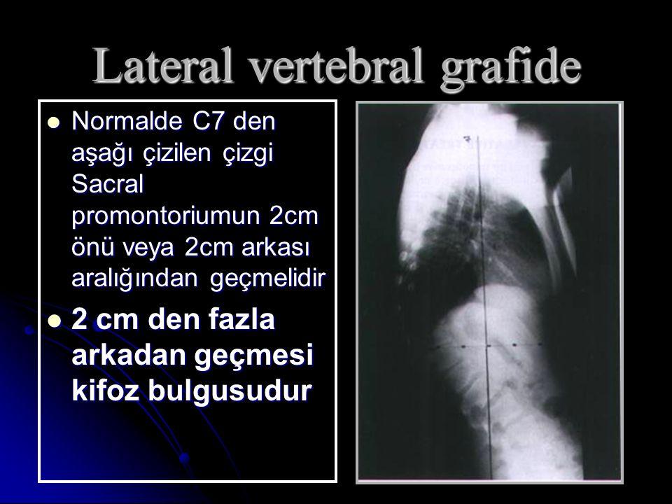 Lateral vertebral grafide
