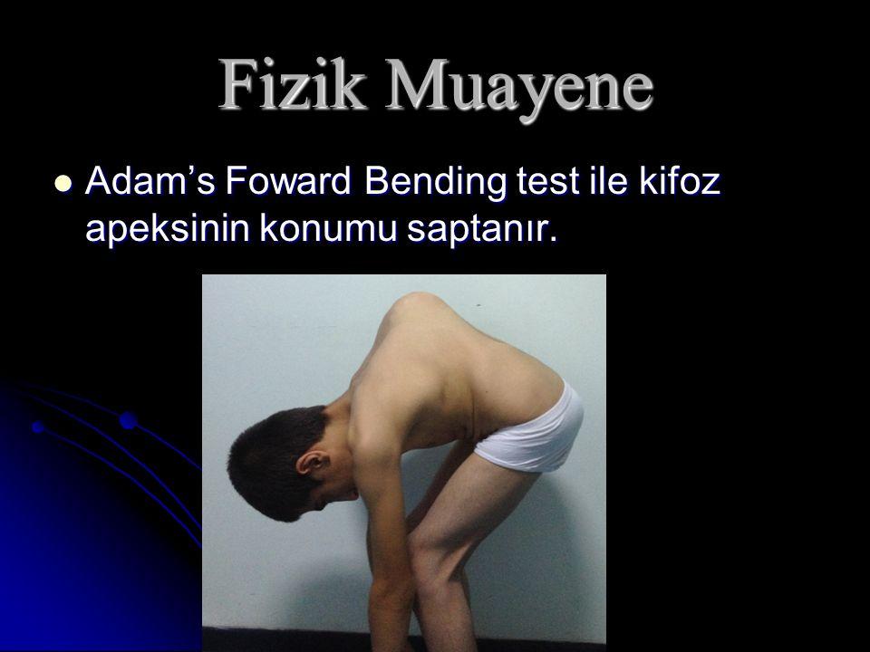 Fizik Muayene Adam's Foward Bending test ile kifoz apeksinin konumu saptanır.