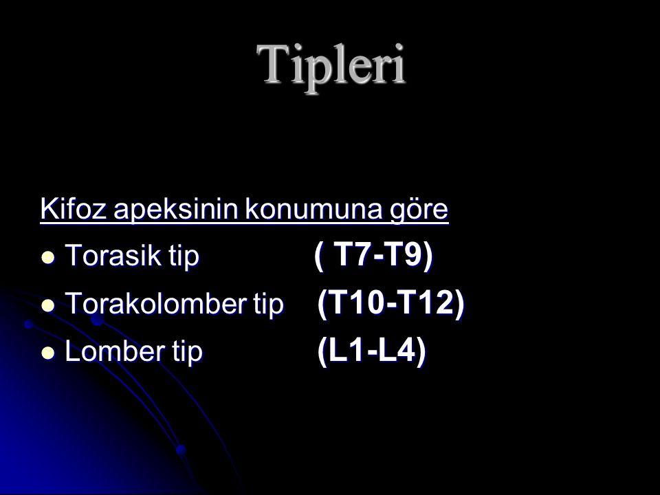 Tipleri Kifoz apeksinin konumuna göre Torasik tip ( T7-T9)