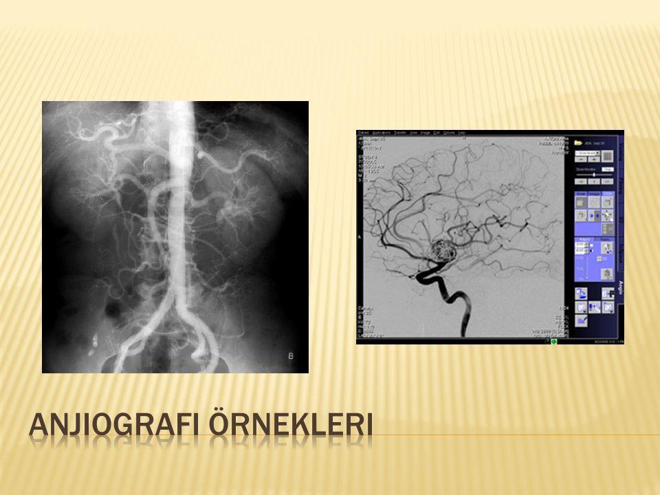 Anjiografi örnekleri