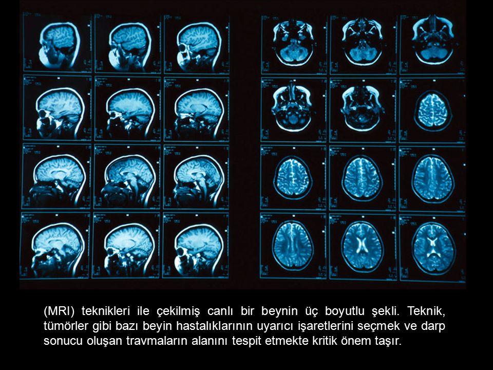 (MRI) teknikleri ile çekilmiş canlı bir beynin üç boyutlu şekli