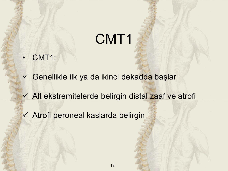CMT1 CMT1: Genellikle ilk ya da ikinci dekadda başlar