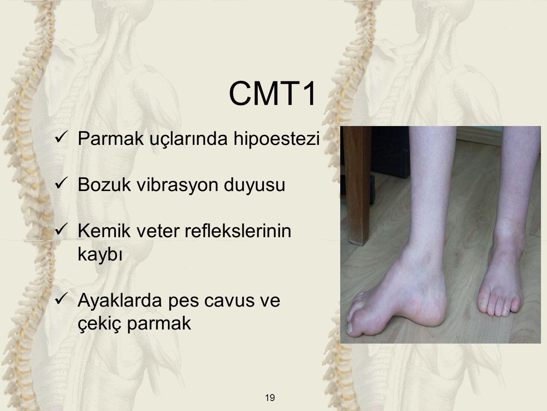 CMT1 Parmak uçlarında hipoestezi Bozuk vibrasyon duyusu