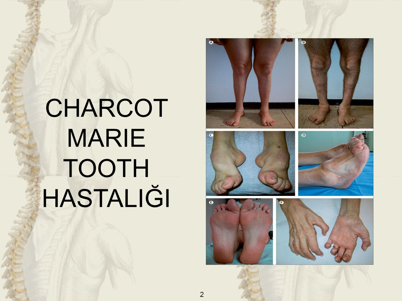 CHARCOT MARIE TOOTH HASTALIĞI