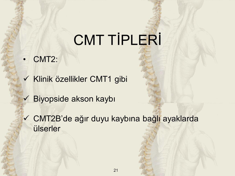 CMT TİPLERİ CMT2: Klinik özellikler CMT1 gibi Biyopside akson kaybı