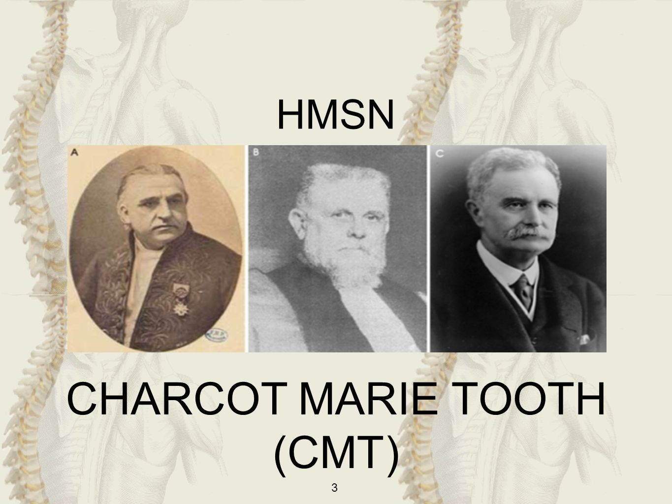 HMSN CHARCOT MARIE TOOTH (CMT)