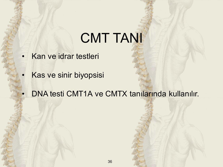 CMT TANI Kan ve idrar testleri Kas ve sinir biyopsisi