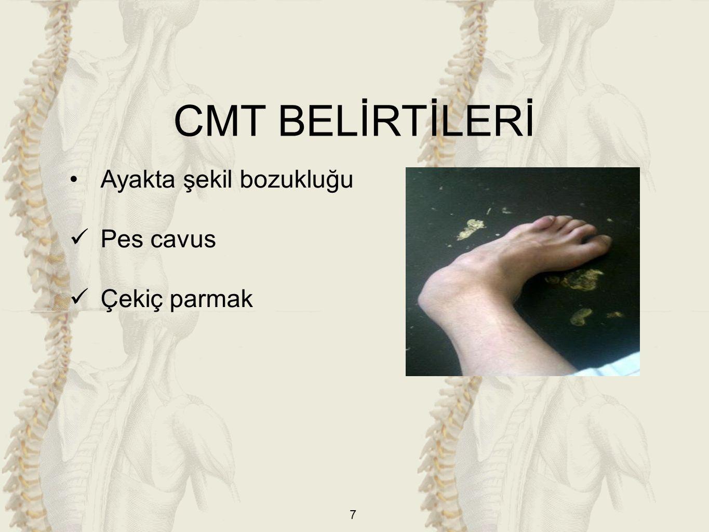 CMT BELİRTİLERİ Ayakta şekil bozukluğu Pes cavus Çekiç parmak