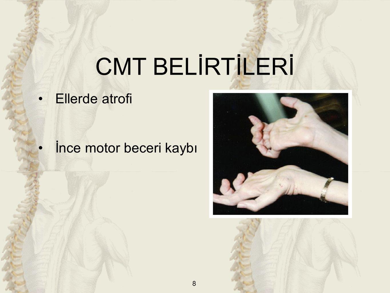 CMT BELİRTİLERİ Ellerde atrofi İnce motor beceri kaybı