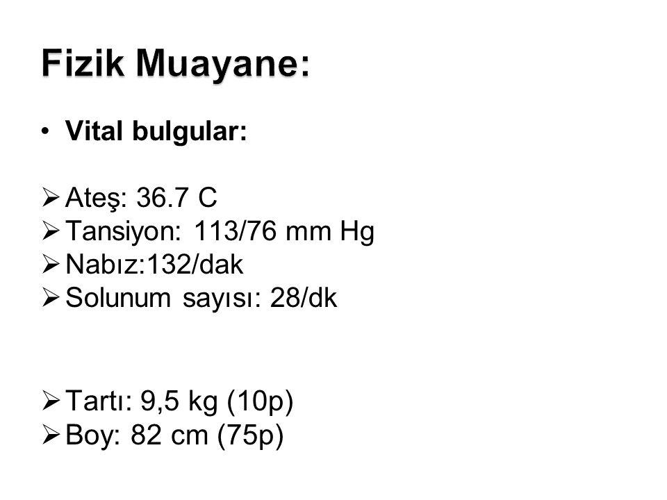 Fizik Muayane: Tartı: 9,5 kg (10p) Boy: 82 cm (75p) Vital bulgular: