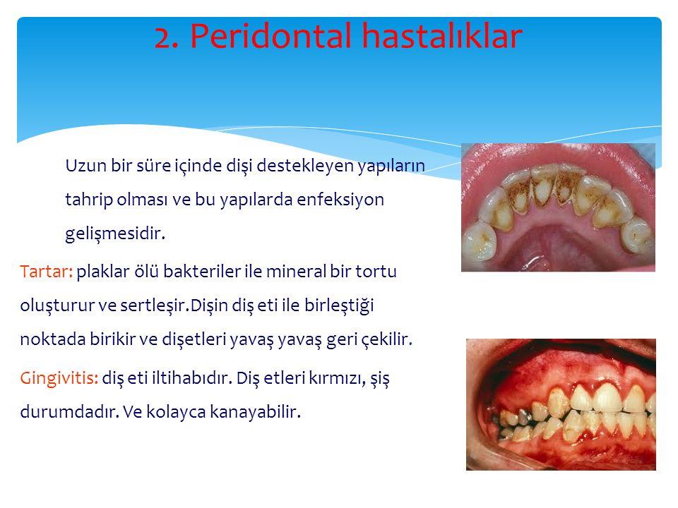 2. Peridontal hastalıklar