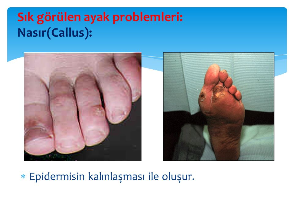 Sık görülen ayak problemleri: Nasır(Callus):