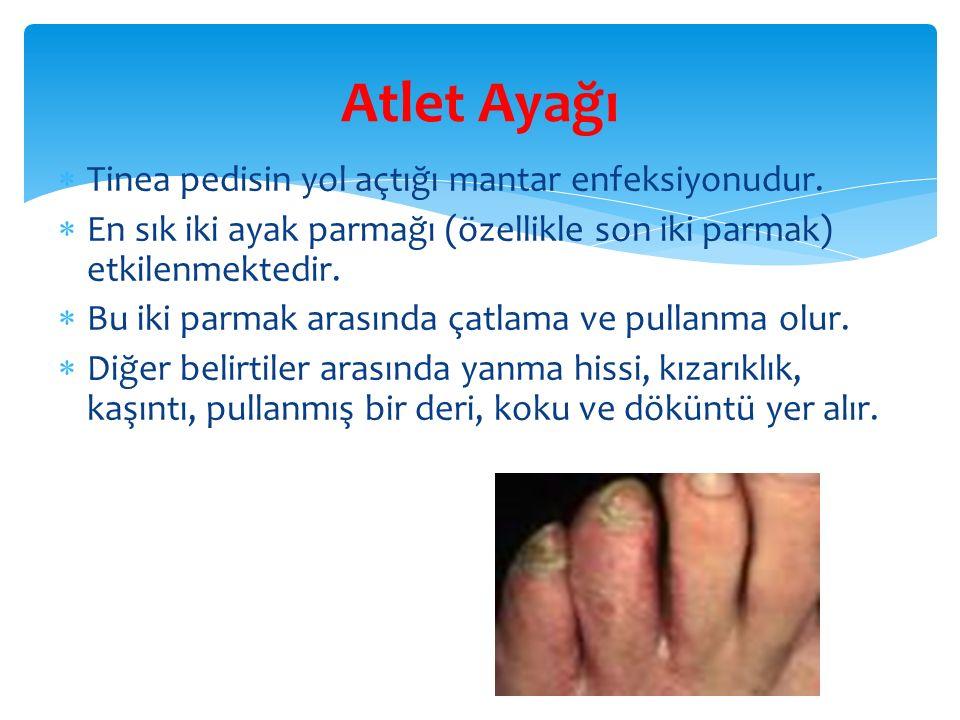 Atlet Ayağı Tinea pedisin yol açtığı mantar enfeksiyonudur.