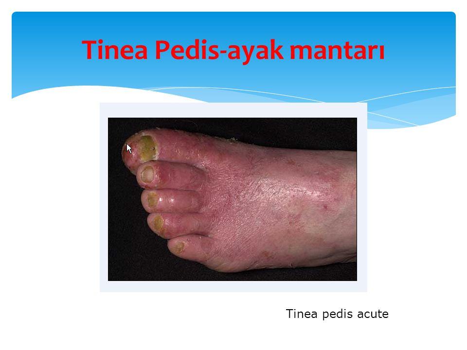 Tinea Pedis-ayak mantarı