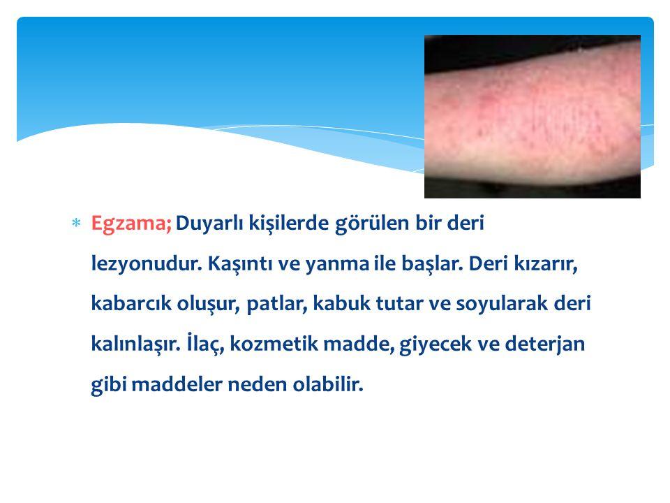 Egzama; Duyarlı kişilerde görülen bir deri lezyonudur