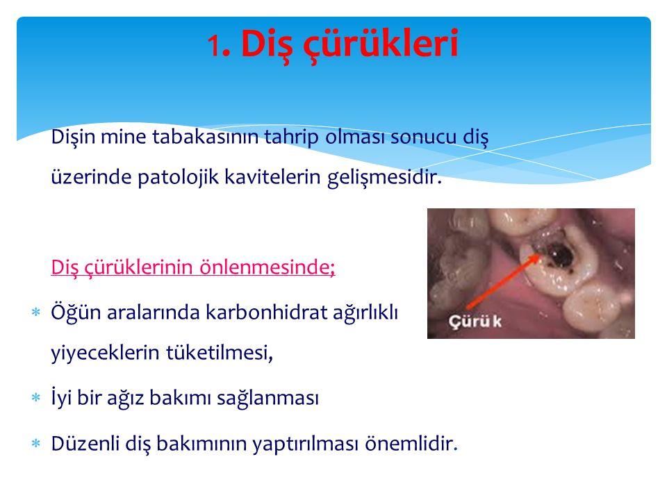 1. Diş çürükleri Diş çürüklerinin önlenmesinde;