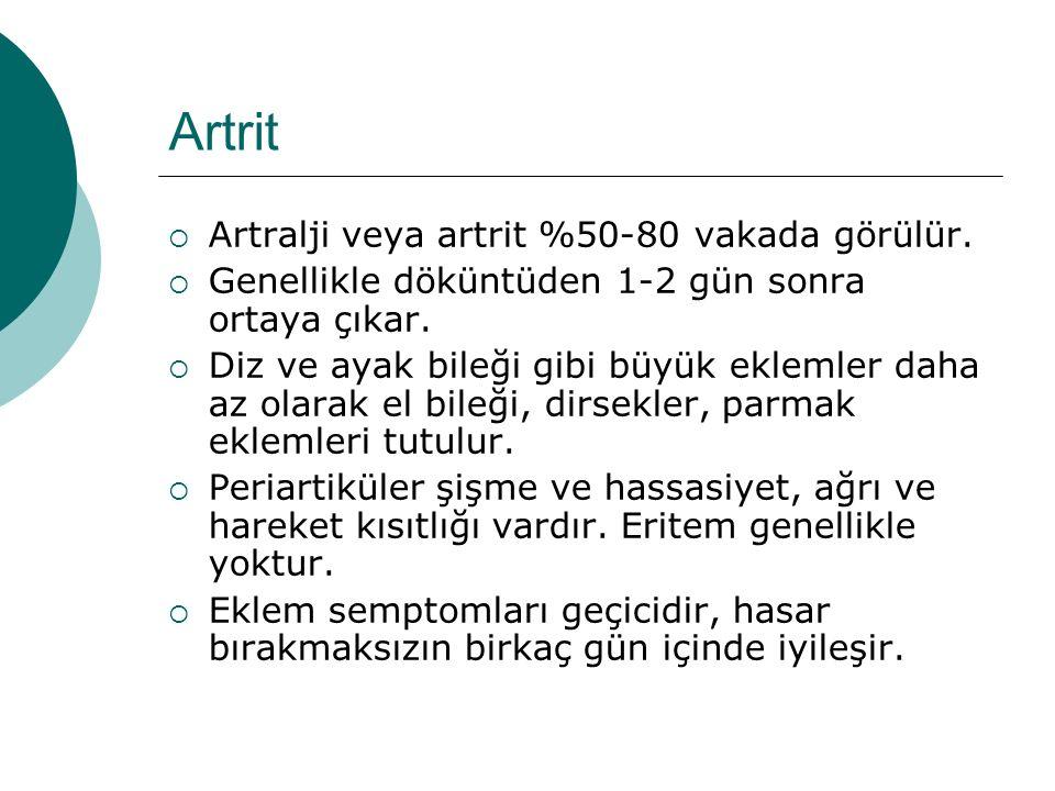 Artrit Artralji veya artrit %50-80 vakada görülür.