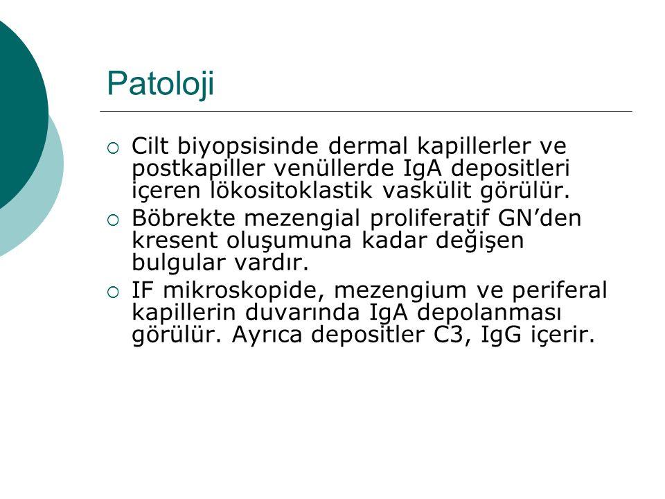Patoloji Cilt biyopsisinde dermal kapillerler ve postkapiller venüllerde IgA depositleri içeren lökositoklastik vaskülit görülür.