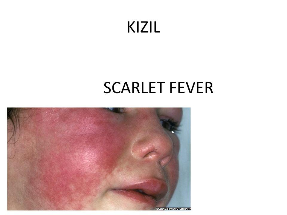 KIZIL SCARLET FEVER
