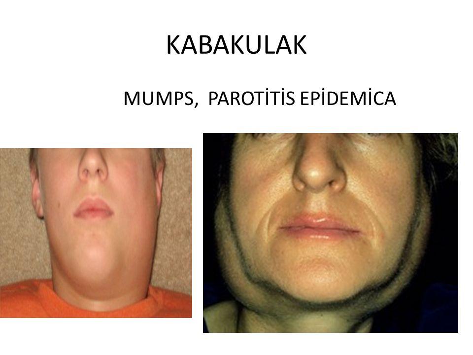 KABAKULAK MUMPS, PAROTİTİS EPİDEMİCA