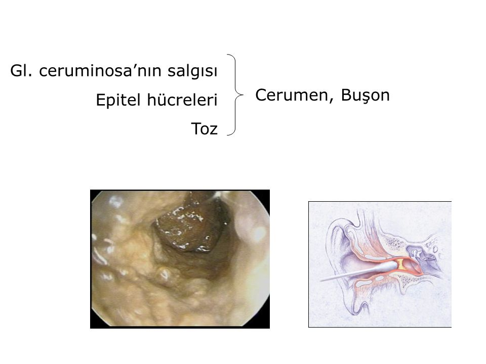 Gl. ceruminosa'nın salgısı