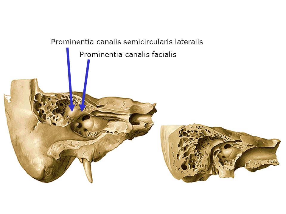 Prominentia canalis semicircularis lateralis