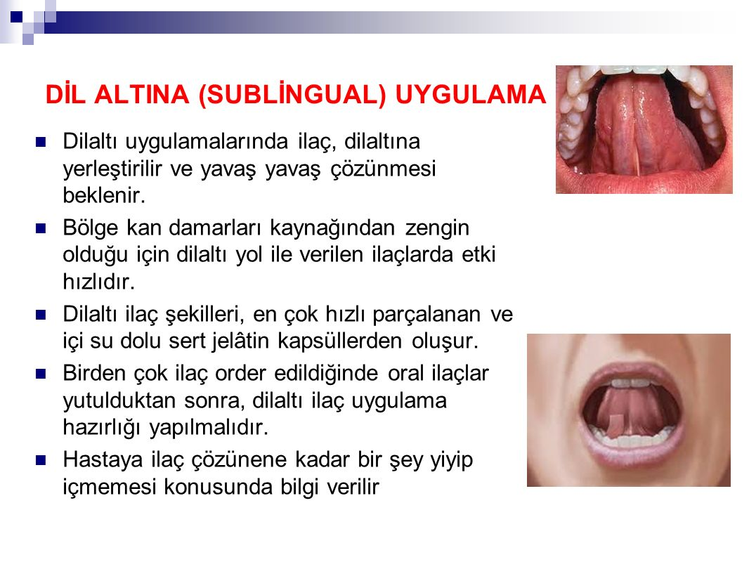 DİL ALTINA (SUBLİNGUAL) UYGULAMA