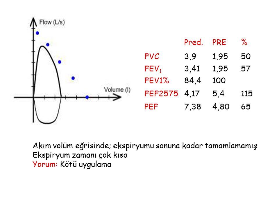 Pred. PRE. % FVC. 3,9. 1,95. 50. FEV1. 3,41. 57. FEV1% 84,4. 100. FEF2575. 4,17. 5,4.