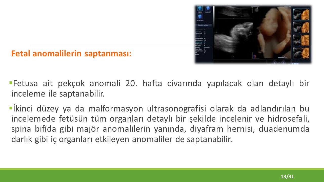 Fetal anomalilerin saptanması: