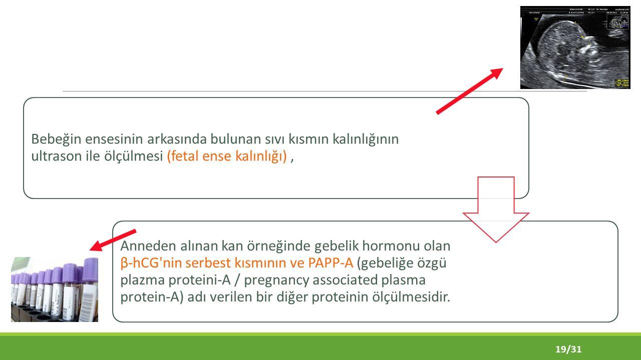 Bebeğin ensesinin arkasında bulunan sıvı kısmın kalınlığının ultrason ile ölçülmesi (fetal ense kalınlığı) ,