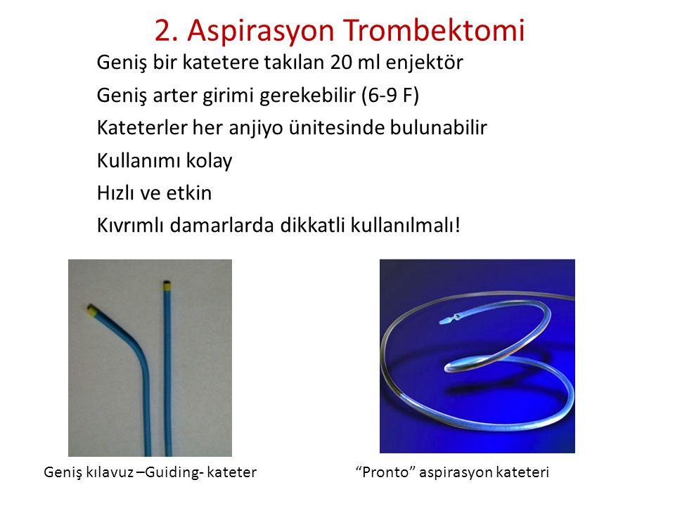 2. Aspirasyon Trombektomi