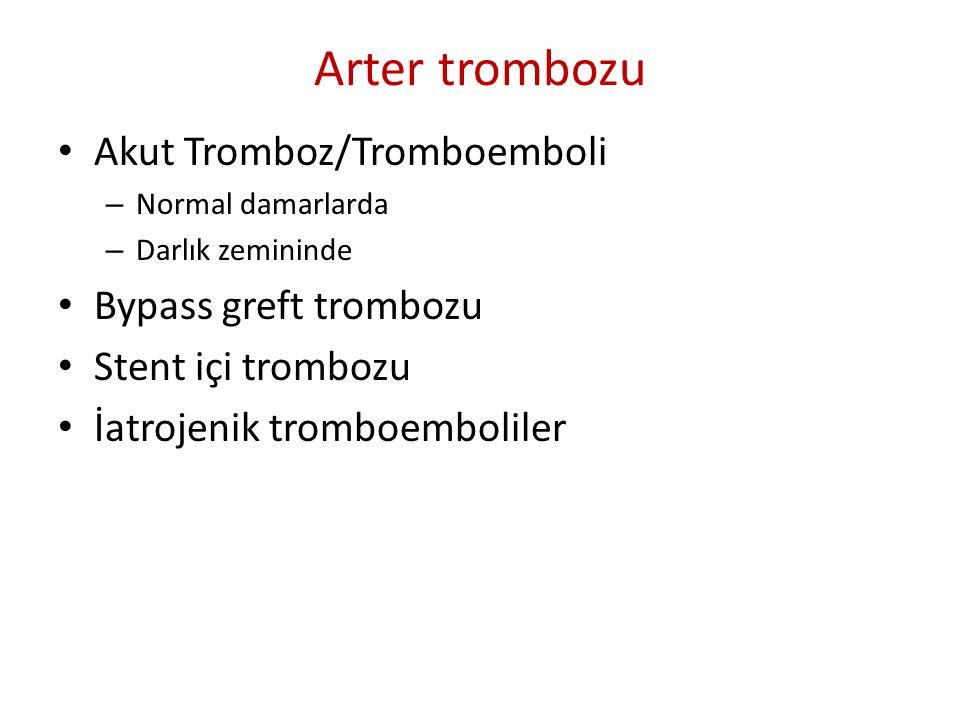 Arter trombozu Akut Tromboz/Tromboemboli Bypass greft trombozu
