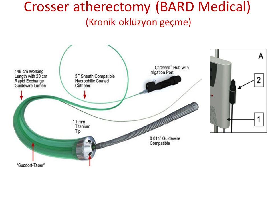 Crosser atherectomy (BARD Medical) (Kronik oklüzyon geçme)