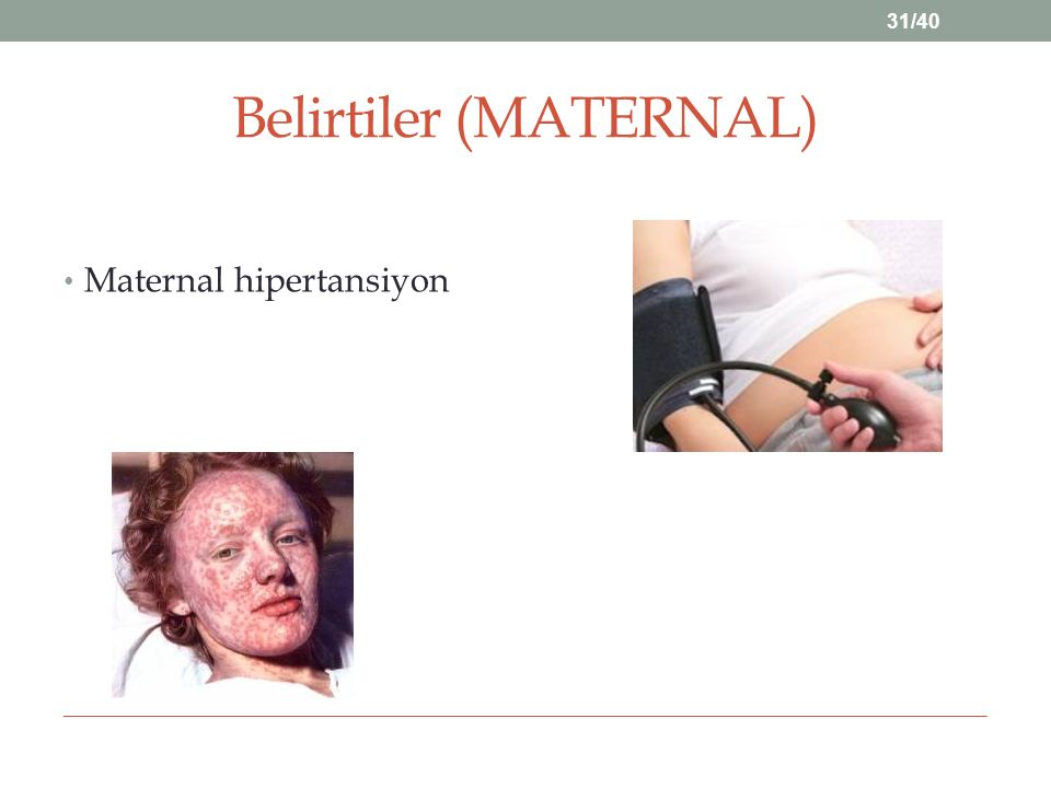 Belirtiler (MATERNAL)