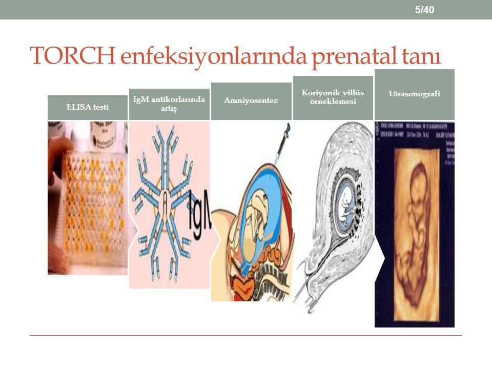 TORCH enfeksiyonlarında prenatal tanı