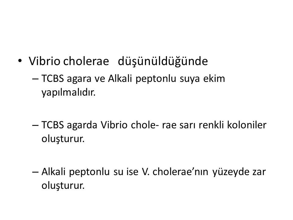 Vibrio cholerae düşünüldüğünde