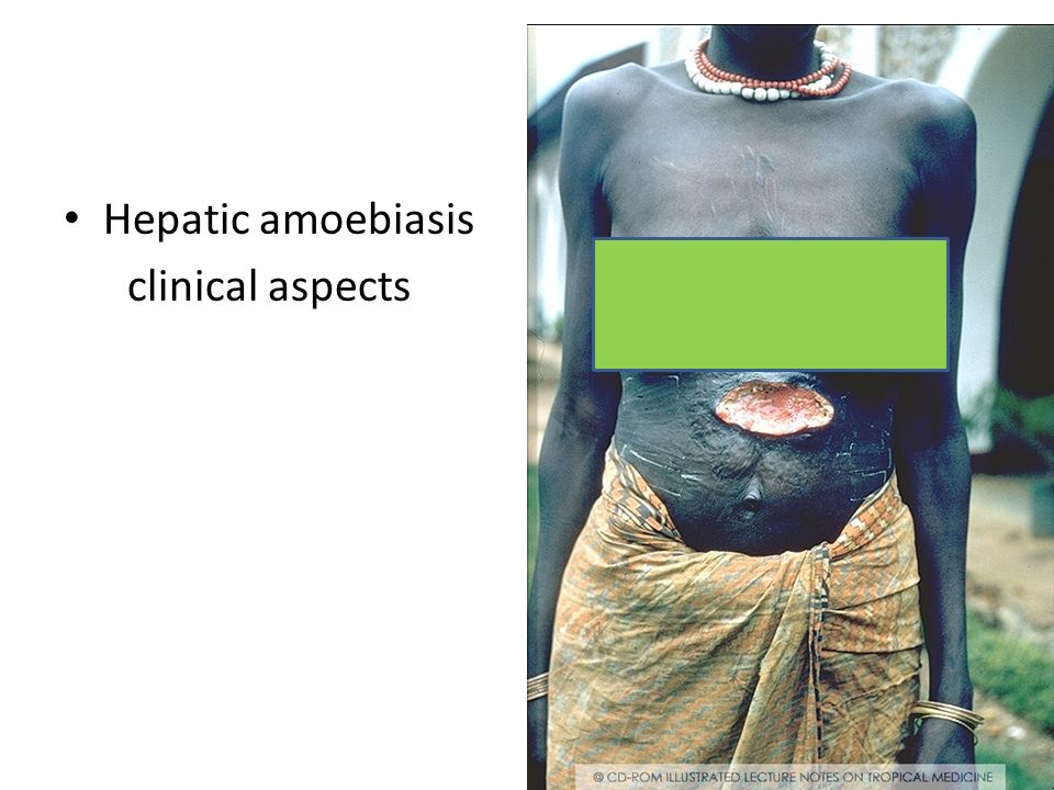 Hepatic amoebiasis clinical aspects