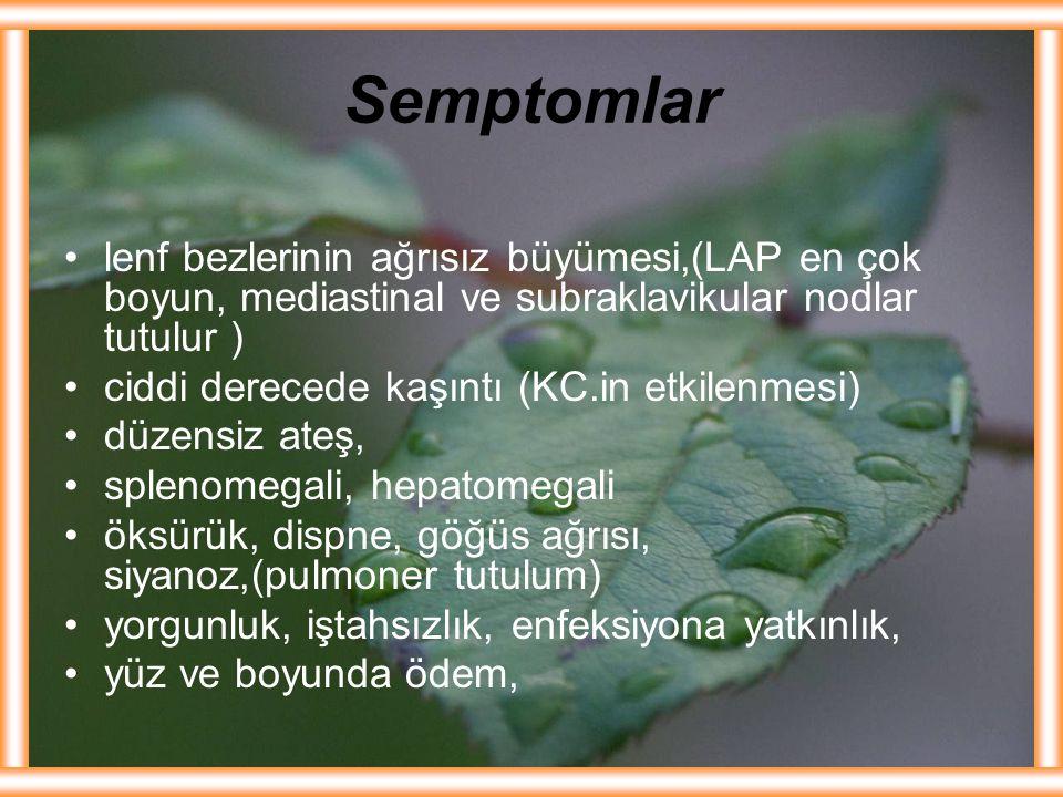 Semptomlar lenf bezlerinin ağrısız büyümesi,(LAP en çok boyun, mediastinal ve subraklavikular nodlar tutulur )