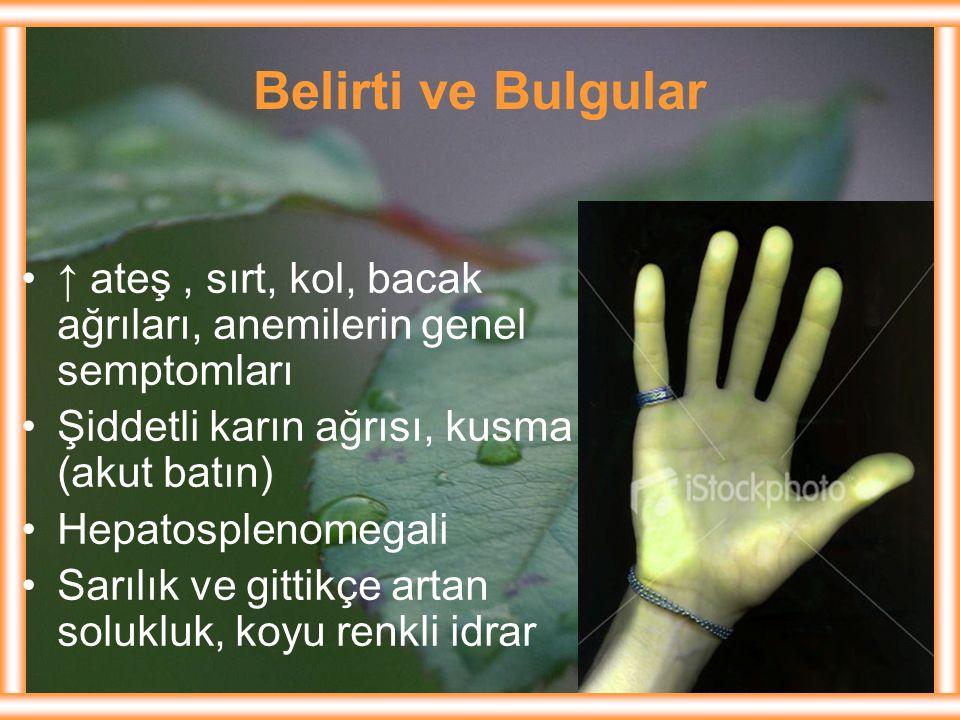 Belirti ve Bulgular ↑ ateş , sırt, kol, bacak ağrıları, anemilerin genel semptomları. Şiddetli karın ağrısı, kusma (akut batın)