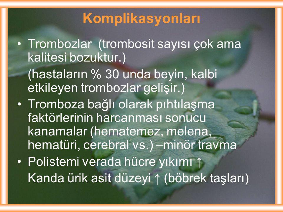 Komplikasyonları Trombozlar (trombosit sayısı çok ama kalitesi bozuktur.) (hastaların % 30 unda beyin, kalbi etkileyen trombozlar gelişir.)