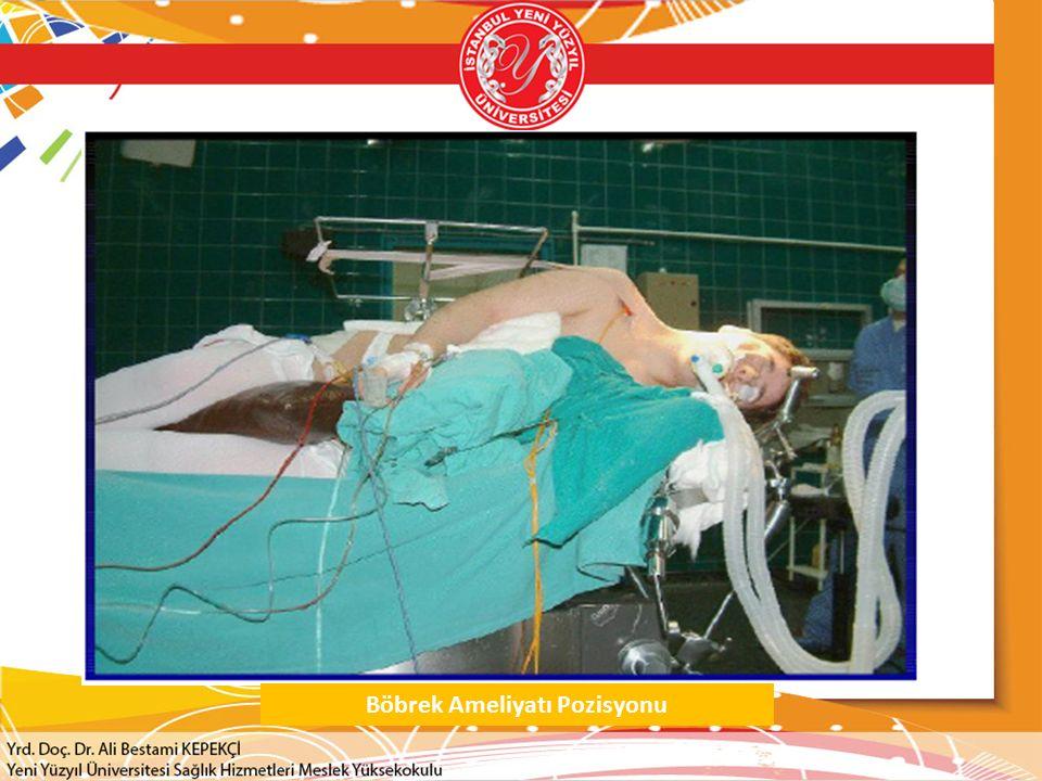 Böbrek Ameliyatı Pozisyonu