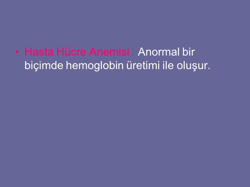 Hasta Hücre Anemisi : Anormal bir biçimde hemoglobin üretimi ile oluşur.