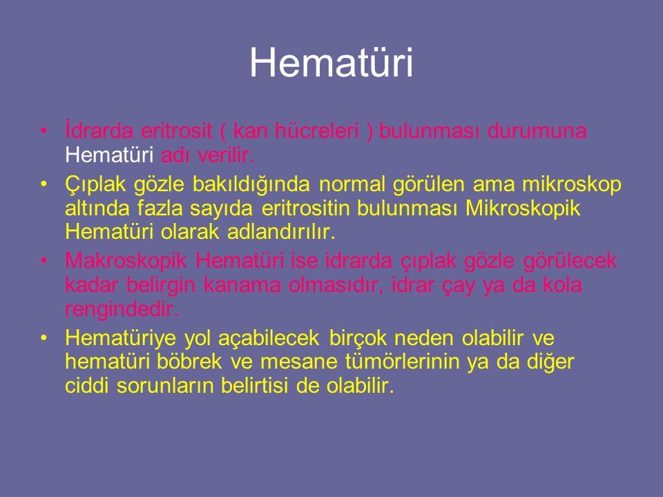 Hematüri İdrarda eritrosit ( kan hücreleri ) bulunması durumuna Hematüri adı verilir.