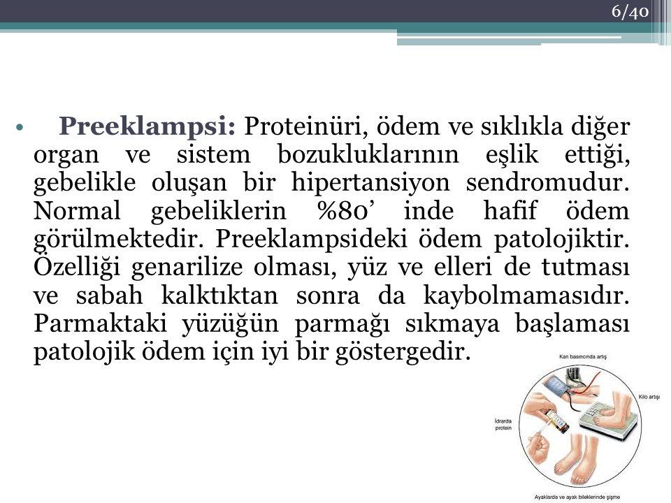 Preeklampsi: Proteinüri, ödem ve sıklıkla diğer organ ve sistem bozukluklarının eşlik ettiği, gebelikle oluşan bir hipertansiyon sendromudur.