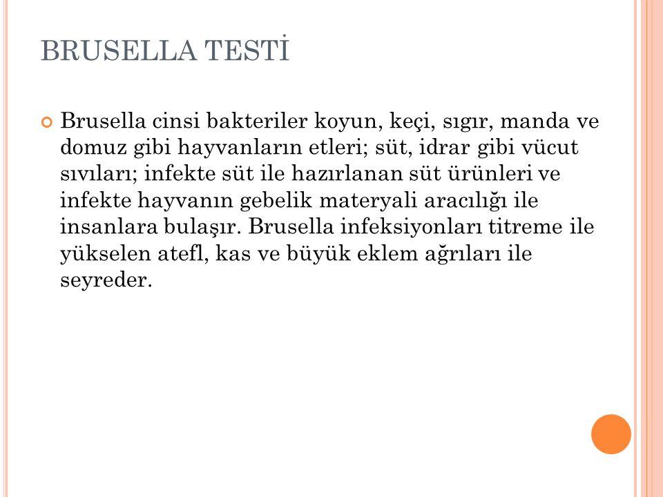 BRUSELLA TESTİ